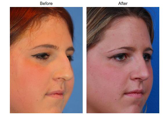 new york surgery Facial plastic