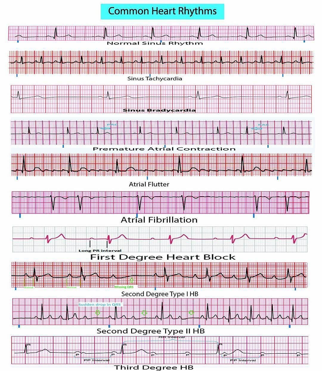 Common Heart Rhythms A Comprehensive Field Reference For