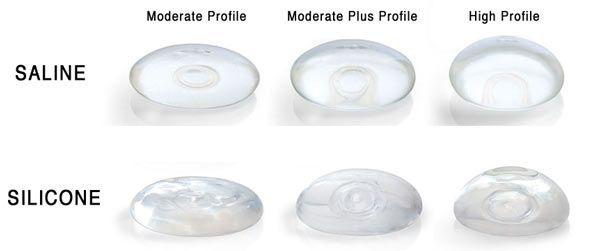 Implants saline breast vs silicone