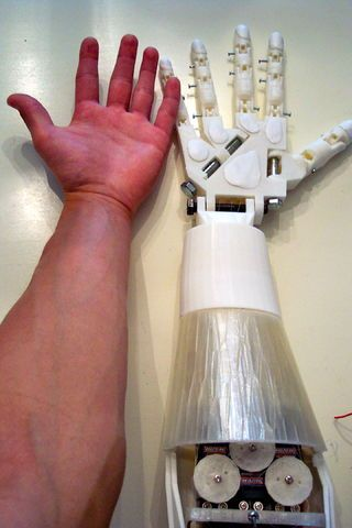 Diy Prosthetic Hand Forearm Voice Controlled Voice Control The Voice Prosthetics