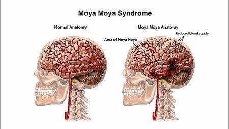 Moyamoya Disease   Moyamoya disease, Brain diseases, Disease