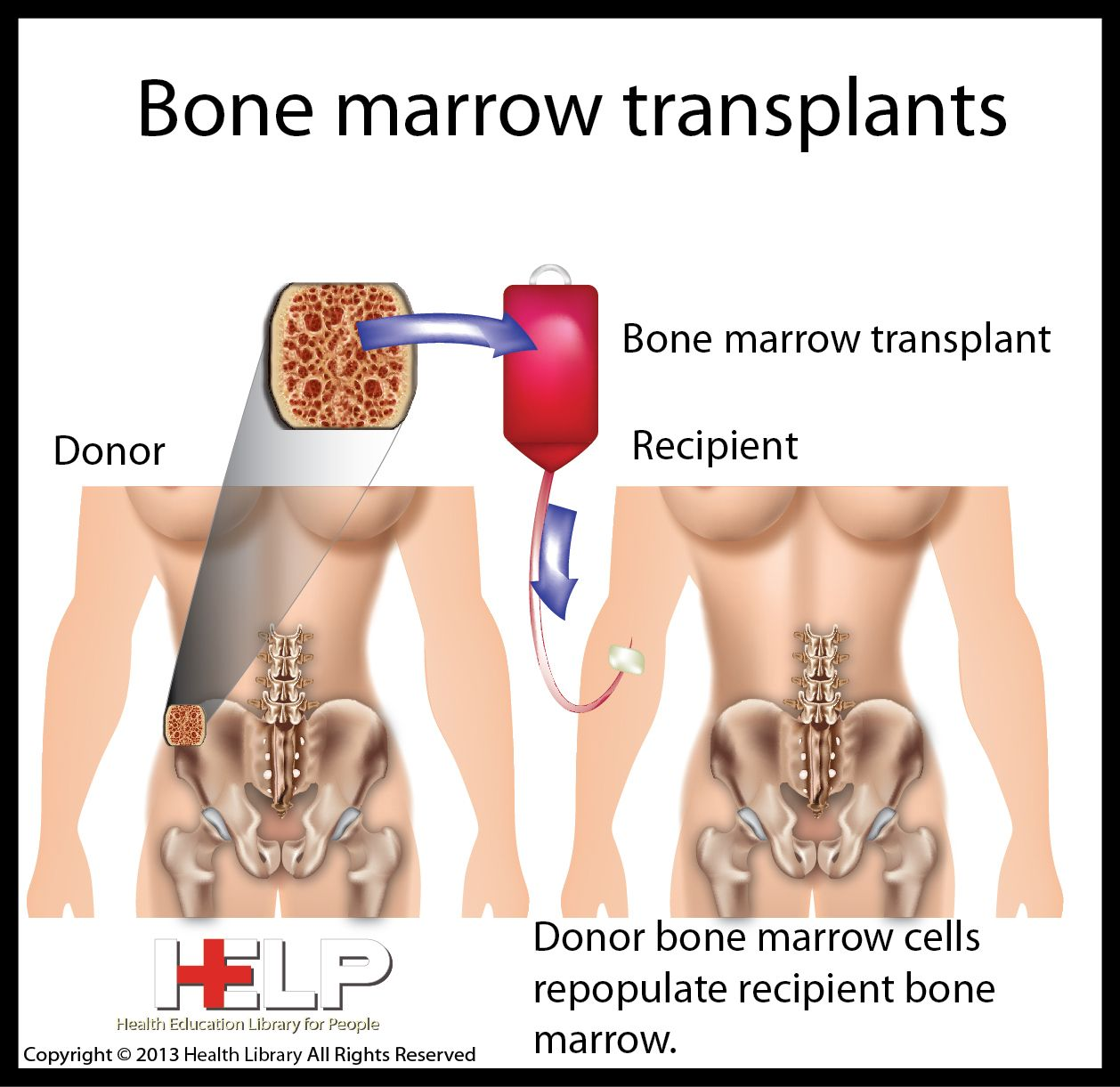 Is Bone Marrow Cancer Curable photo