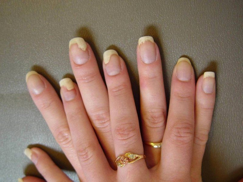 Nail Fungus Under Acrylic Nails Elegant 10 Home Reme S To Treat Finger Nail Infection In 2020 Nail Fungus Remedy Nail Fungus Treatment Toenail Fungus Remedies