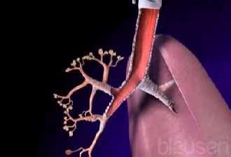 La atelactasia es la interrupción o bloqueo patológico del torrente de aire que atraviesa los bronquios. Esta situación provoca el colapso d...