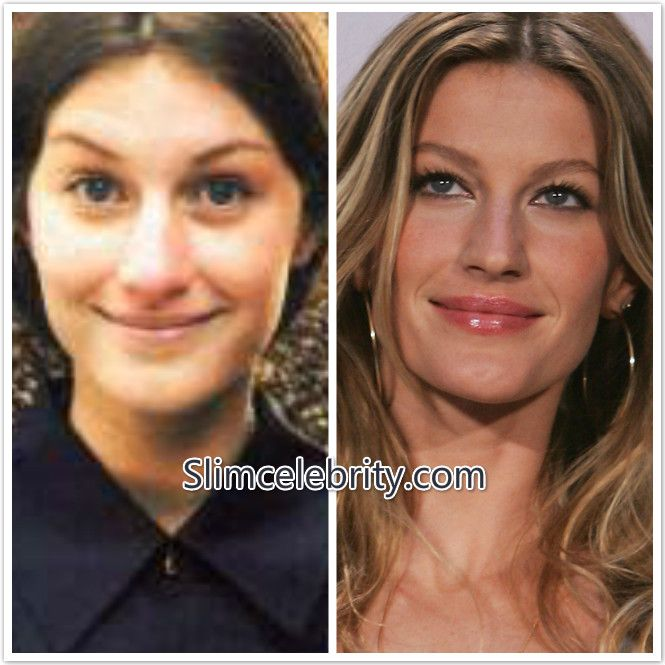 cdcb0568ea Gisele Bundchen Plastic Surgery Before and After Photos Nose Job and Breast  Implants 3