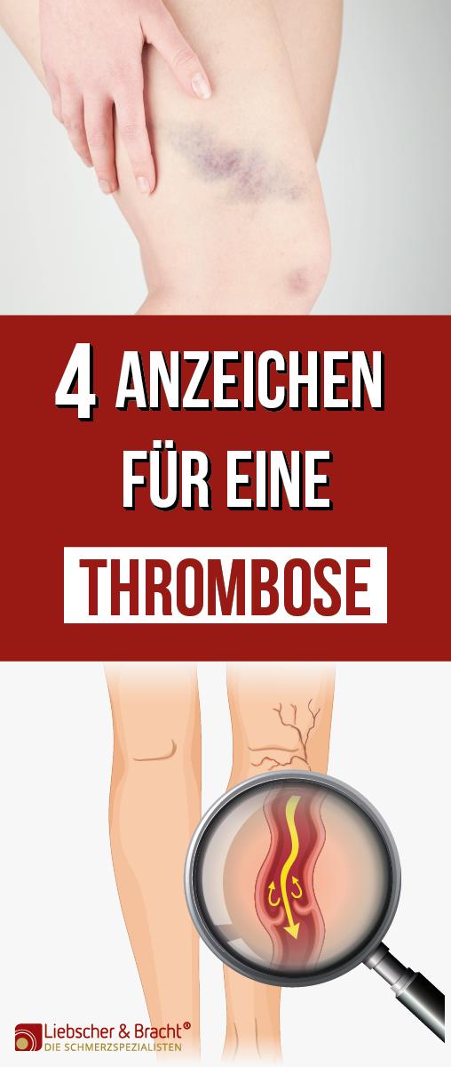 thrombose verdacht diese 4 anzeichen