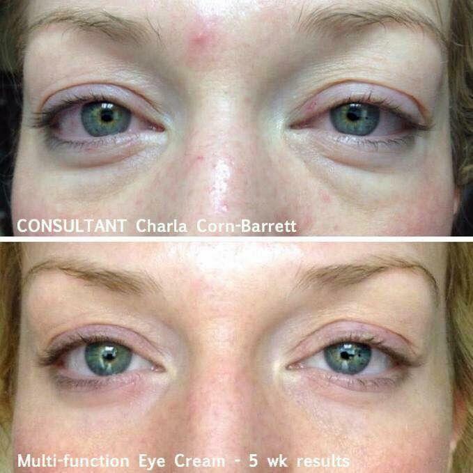 Multi Function Eye Cream Before After Ccaldwell3 Myrandf