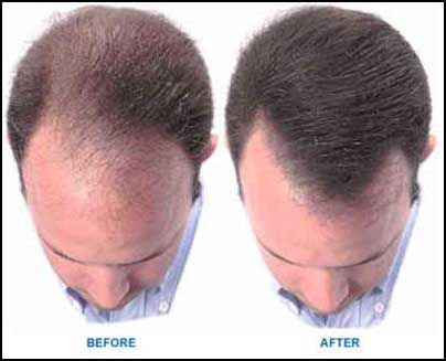 Images Of Hair Loss In Age S