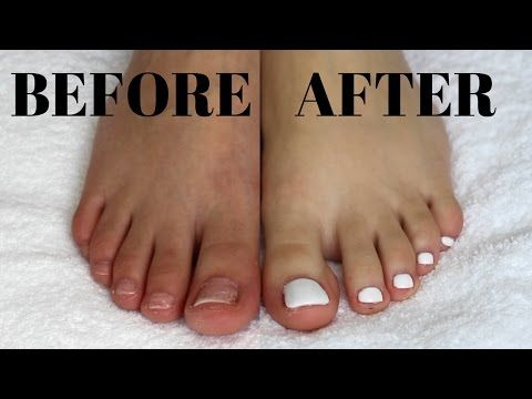 Diy Fake Toenails Pedicure At Home Quick Easy No Acrylic My First You Video