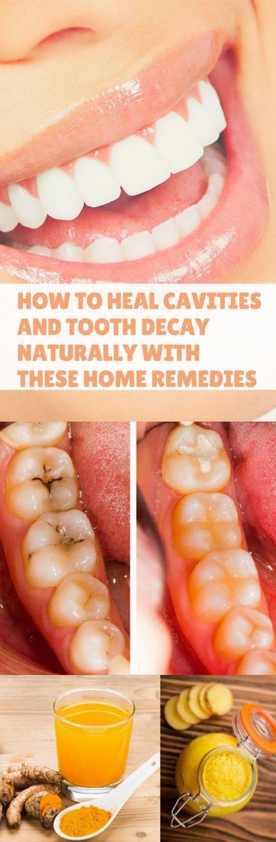 How To Fix Rotting Teeth : rotting, teeth, Welcome, Dangerous.neoseeker.xyz