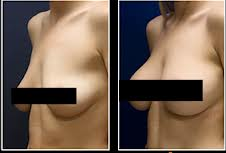 Grow Your Breasts Naturally Without Surgery - healthcare