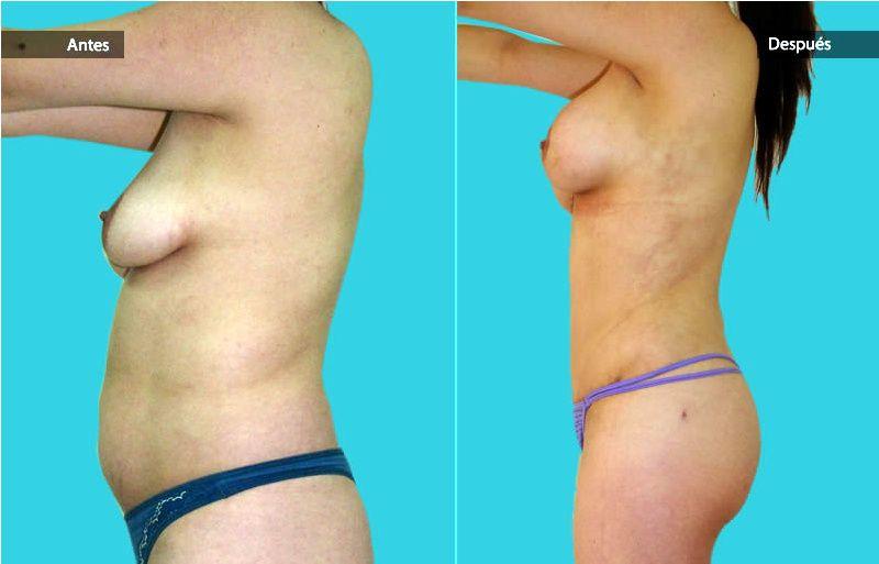 Abdominoplastia-cirugia-plastica-