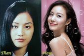 Best 5 Korean Plastic Surgery Before And After Photos – CelebLens – Celebrity Pl…