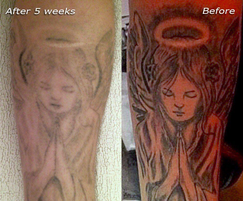 Laserless tattoo removal tattoo removal cost tattoo
