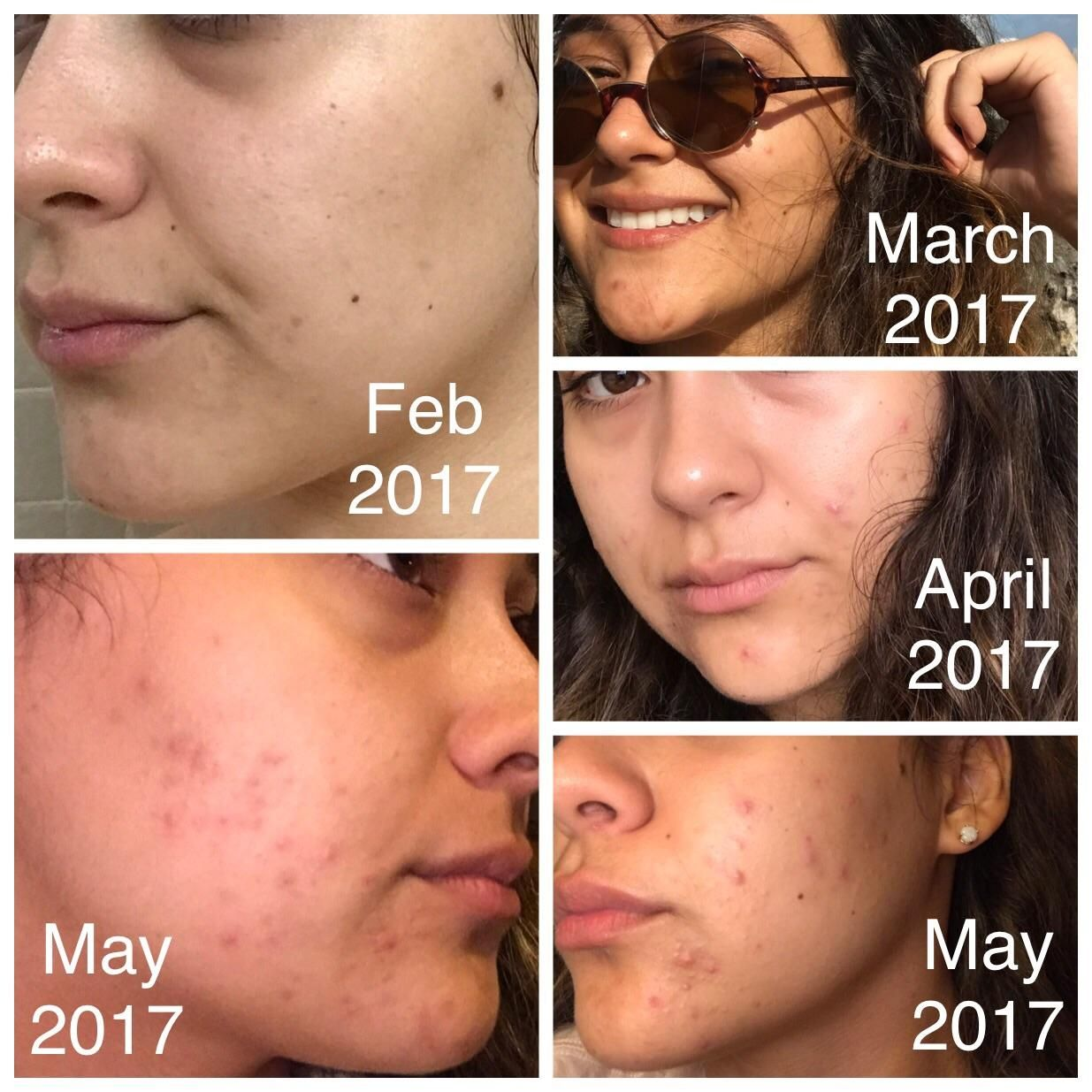 [Acne] Regression I've recently started struggling with