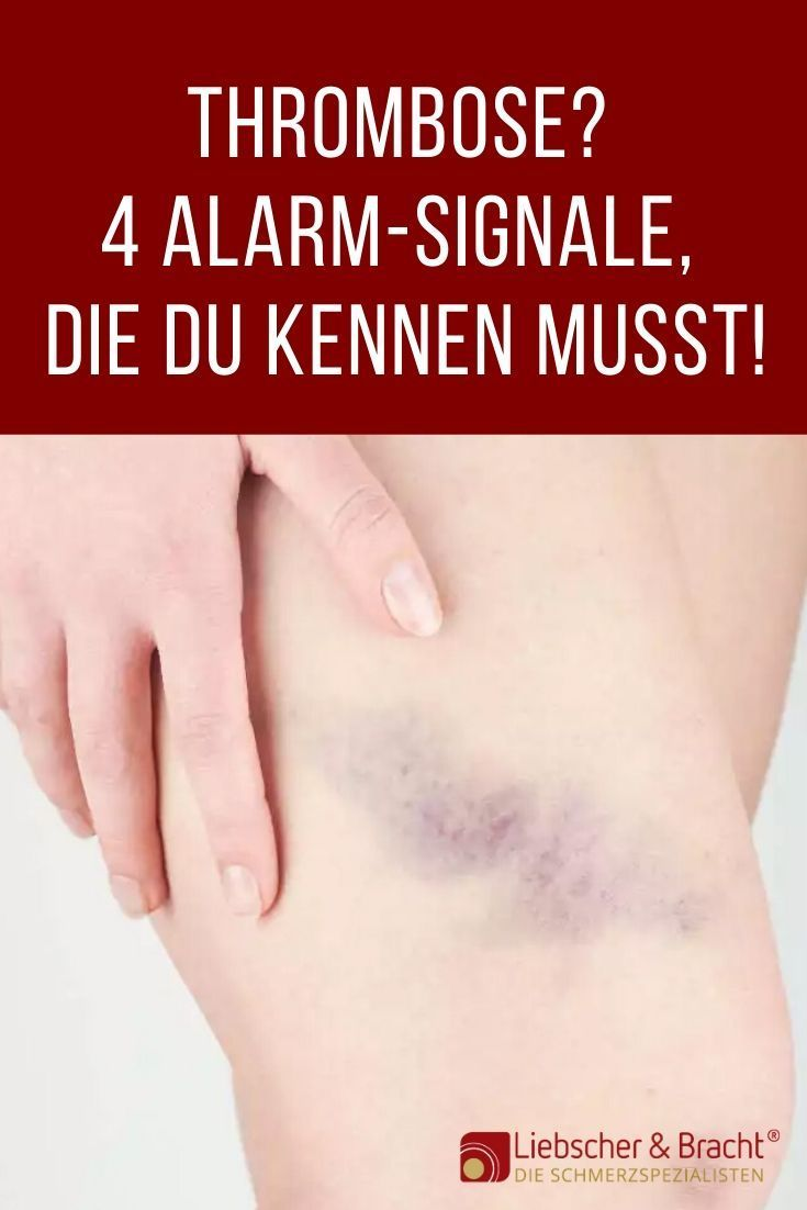 Thrombose Symptome Bein