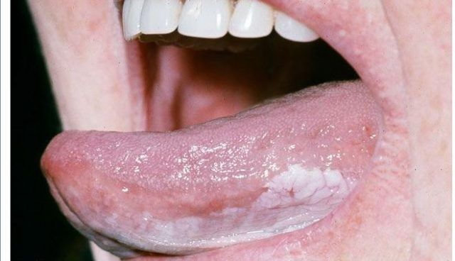 White coating under tongue | BUMPS, PIMPLES, ACNE, ZITS ...