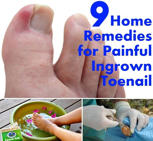 Home-Remedies-for-Painful-Ingrown-Toenail | Home Remedies ...