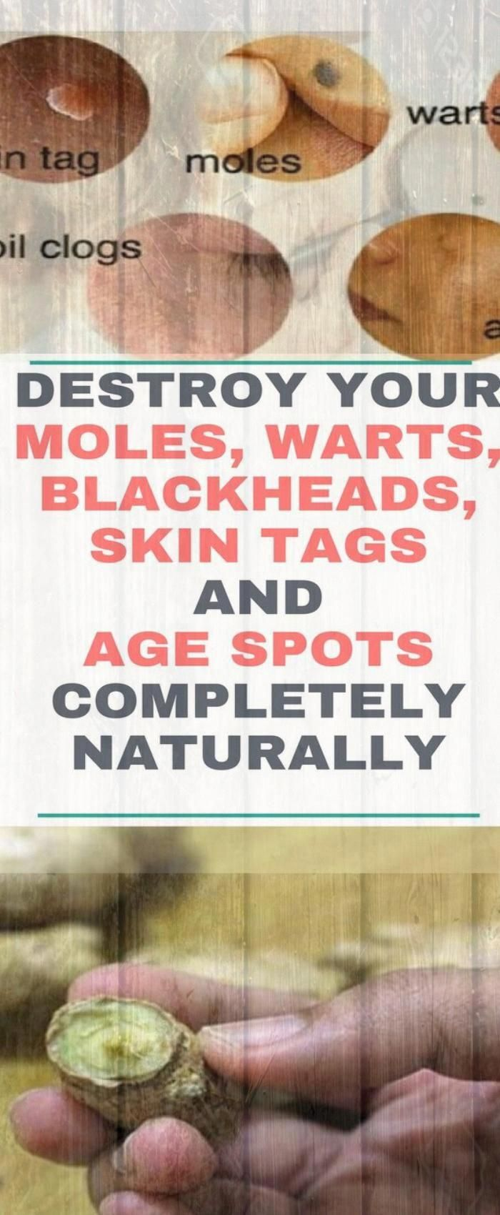 DESTROY YOUR MOLES, WARTS, BLACKHEADS, SKIN TAGS AND AGE SPOTS COMPLETELY NATURALLY #health #fitness...