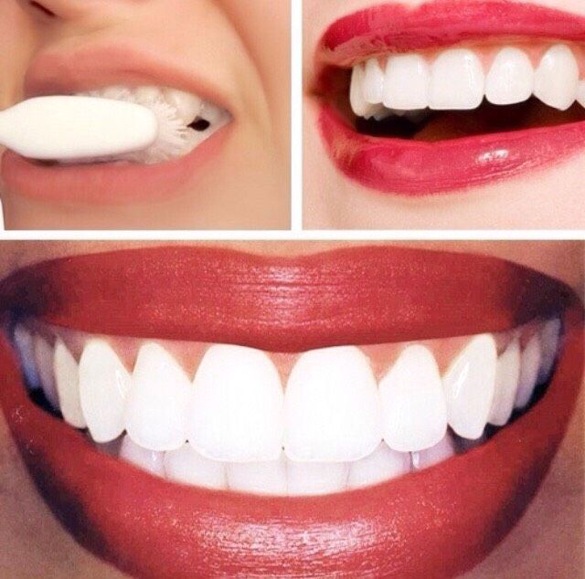 Fast Way To Whiten Your Teeth After The First Treatment Beauty