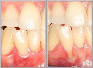 How to Heal Loose Teeth.