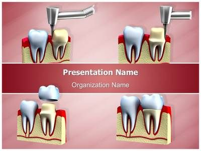 Check out our professionally designed dental crown installation check out our professionally designed dental crown installation process ppt template download toneelgroepblik Choice Image