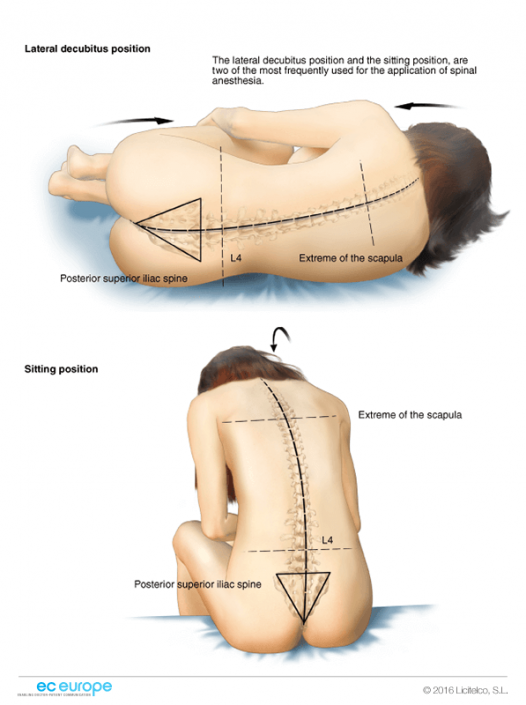 Spinal Anesthesia Positions Nurse Anesthesia Pinterest