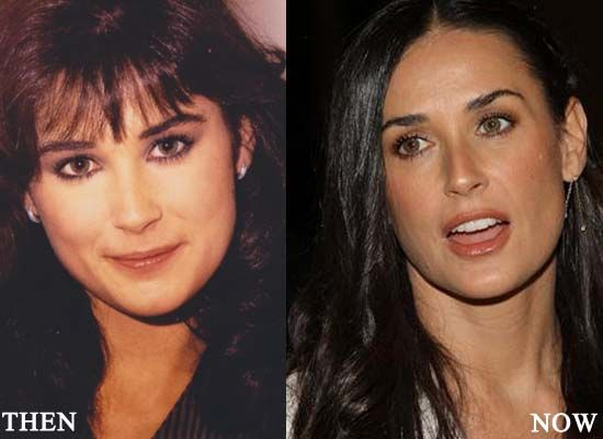 Demi Moore Plastic Surgery Photo Before and After | Celebrity ...