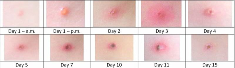 Adult chicken pox duration pic 554