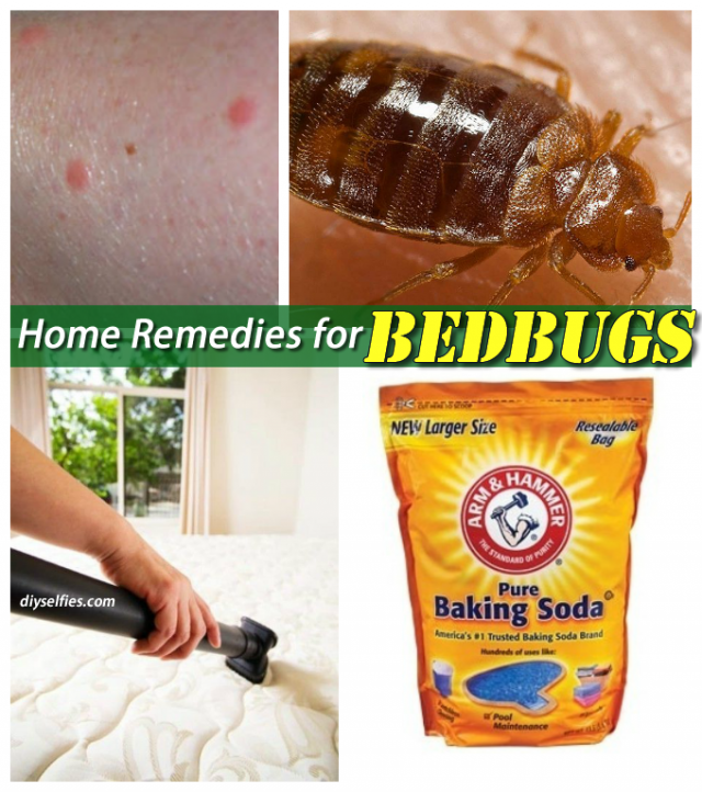 Home Remedies To Get Rid Of Bed Bugs Diyselfies Remedies Bed