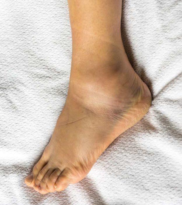 16 Effective Home Remedies For Swollen Feet