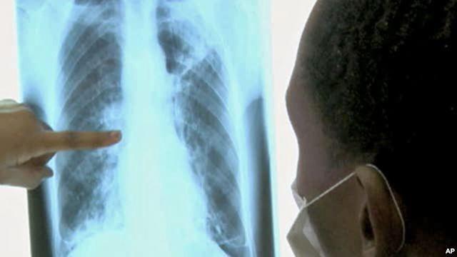 37+ Efek samping flek paru paru ideas
