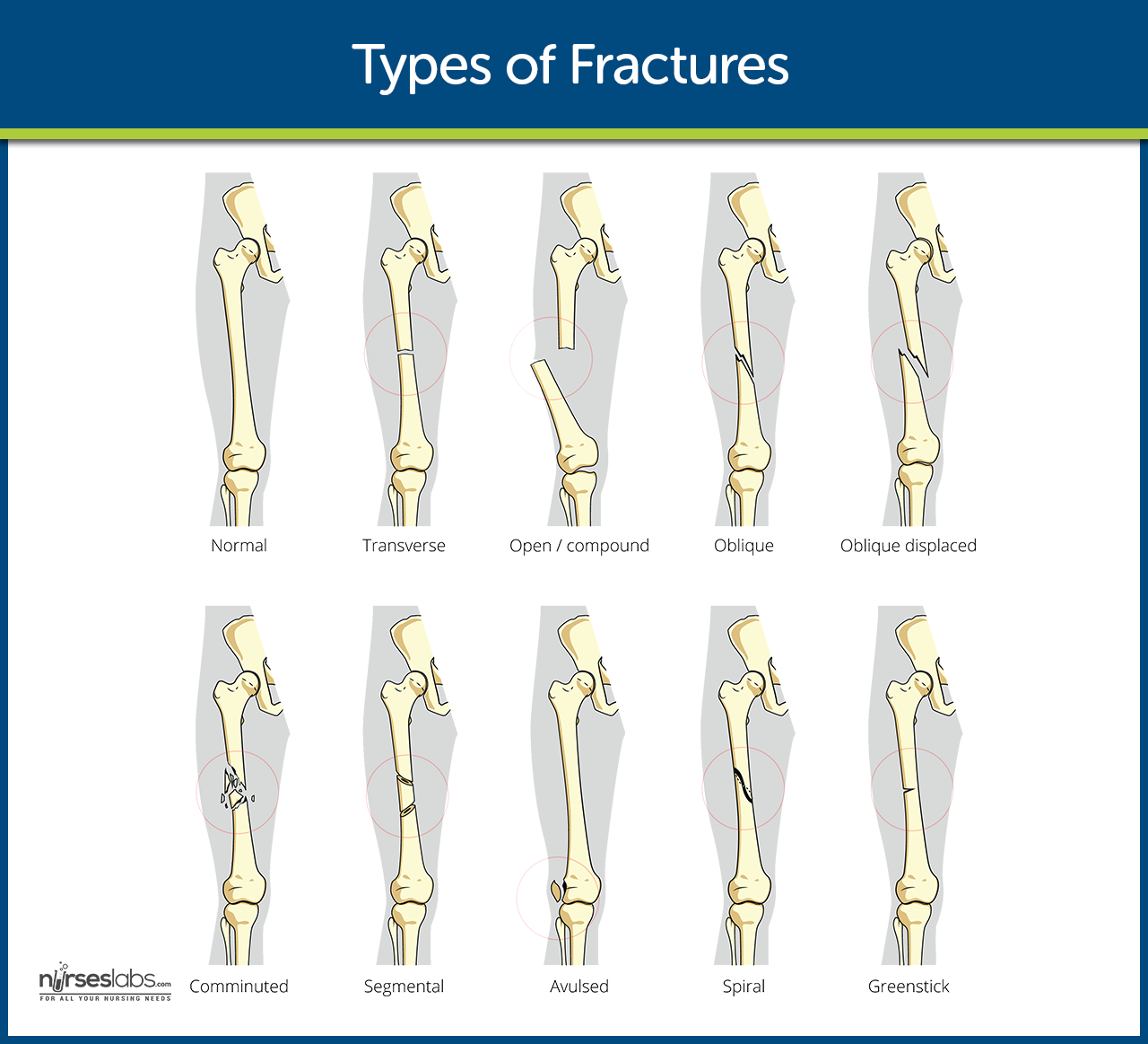 Fracture Nursing School And Study Guides Bone Fracture Nursing