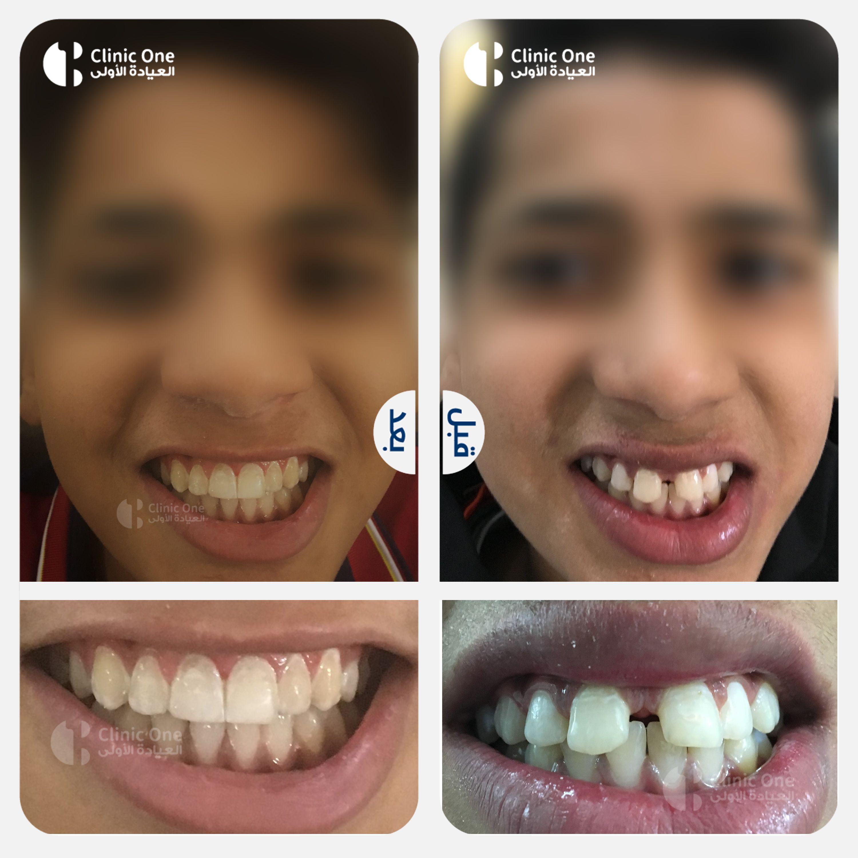 تقويم الاسنان في العيادة الاولى في العراق Clinic Lins