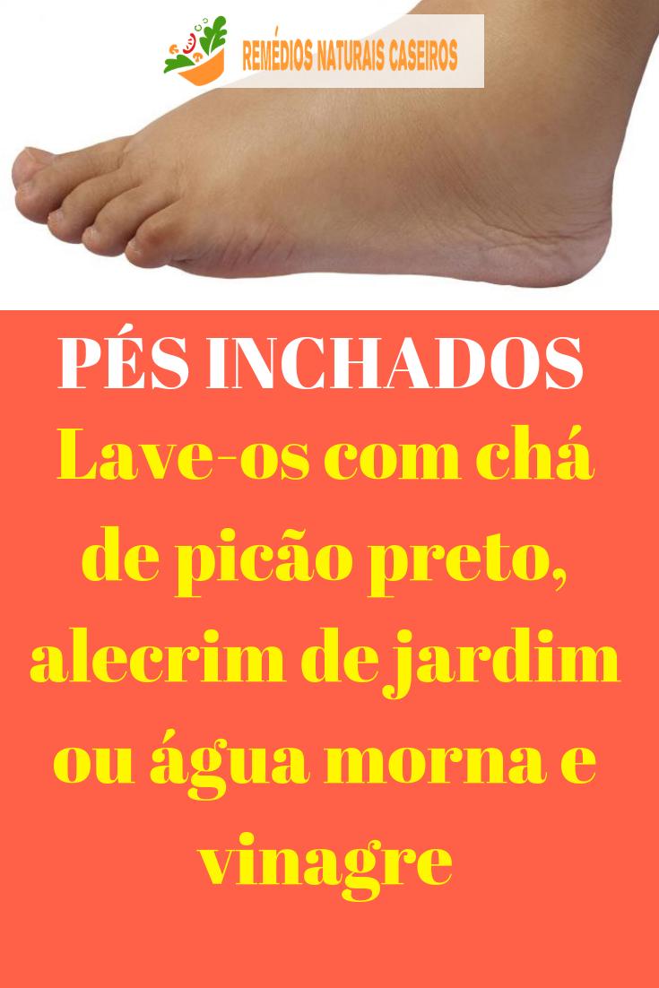 Remédio pés caseiro inchados
