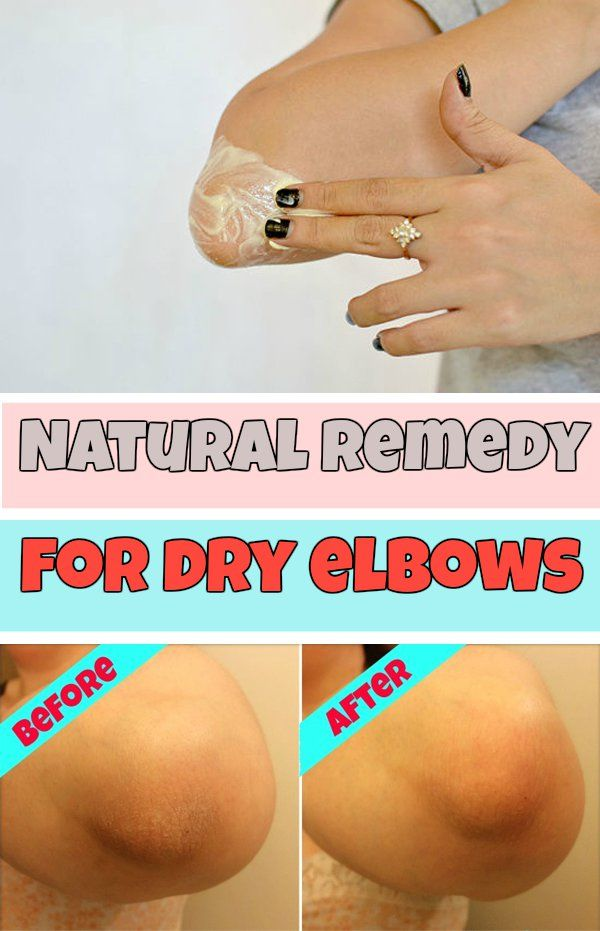 how to get rid of dry elbows