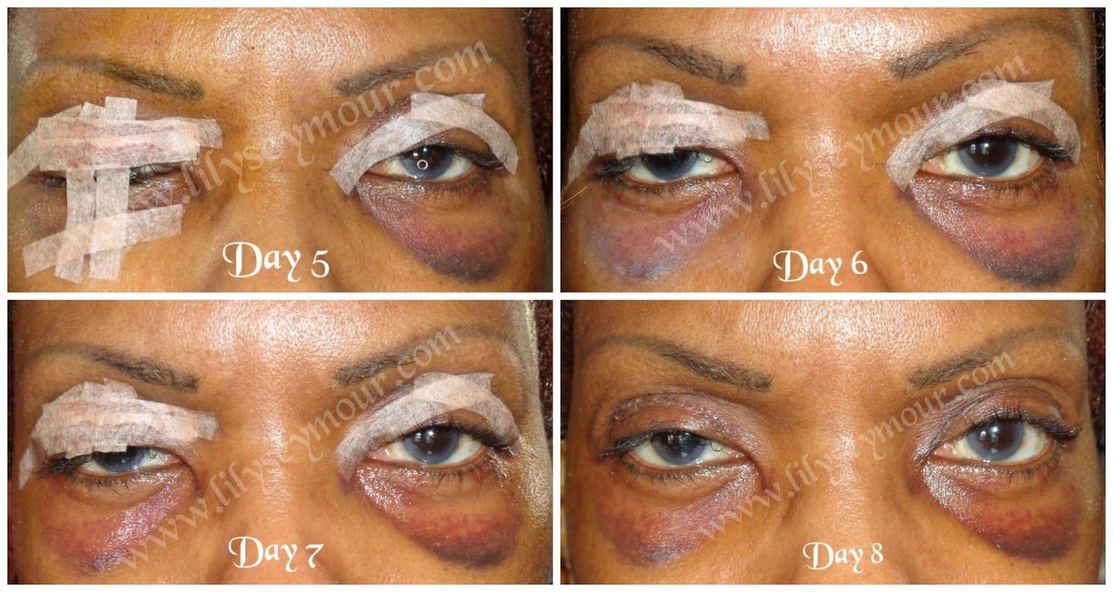Blepharoplasty day by day photos Baby s First