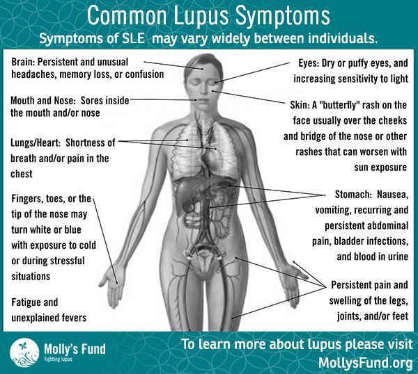 and facial pain Lupus