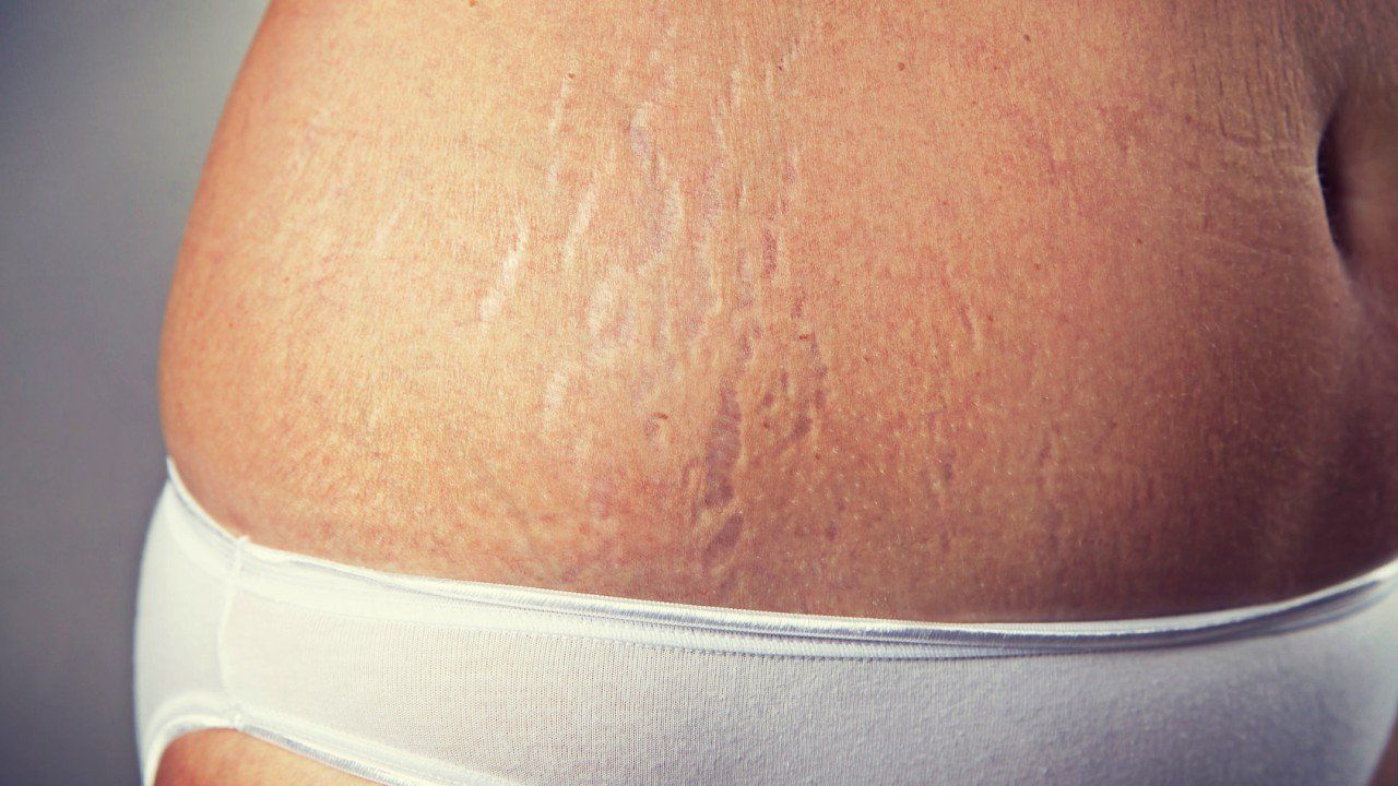 Pin On Preventing Stretch Marks