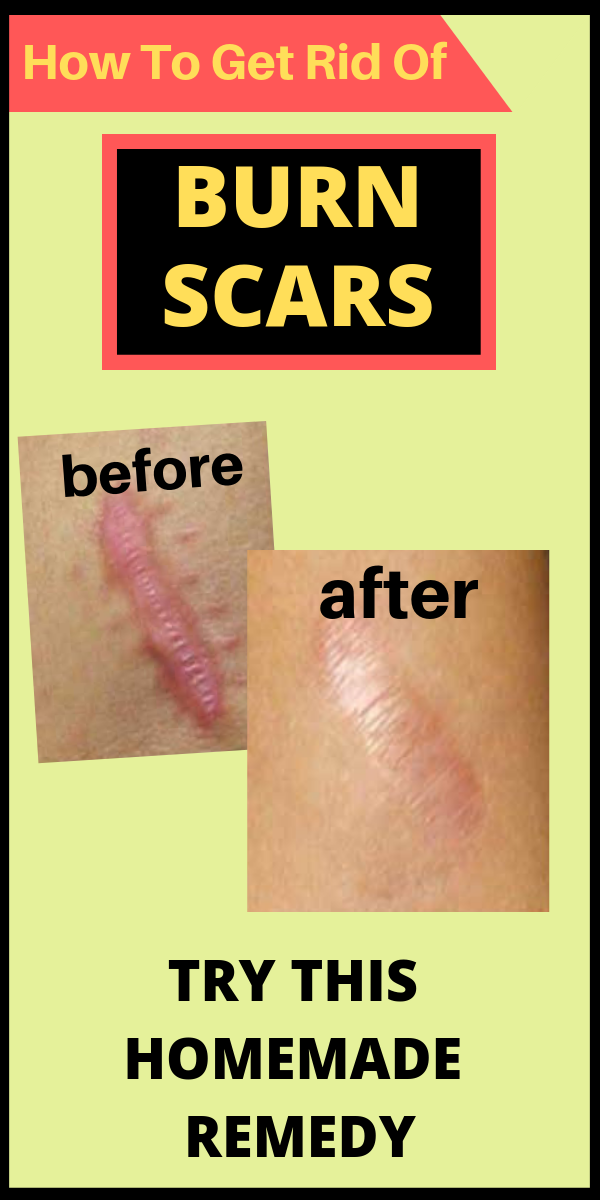 Pin On Scars