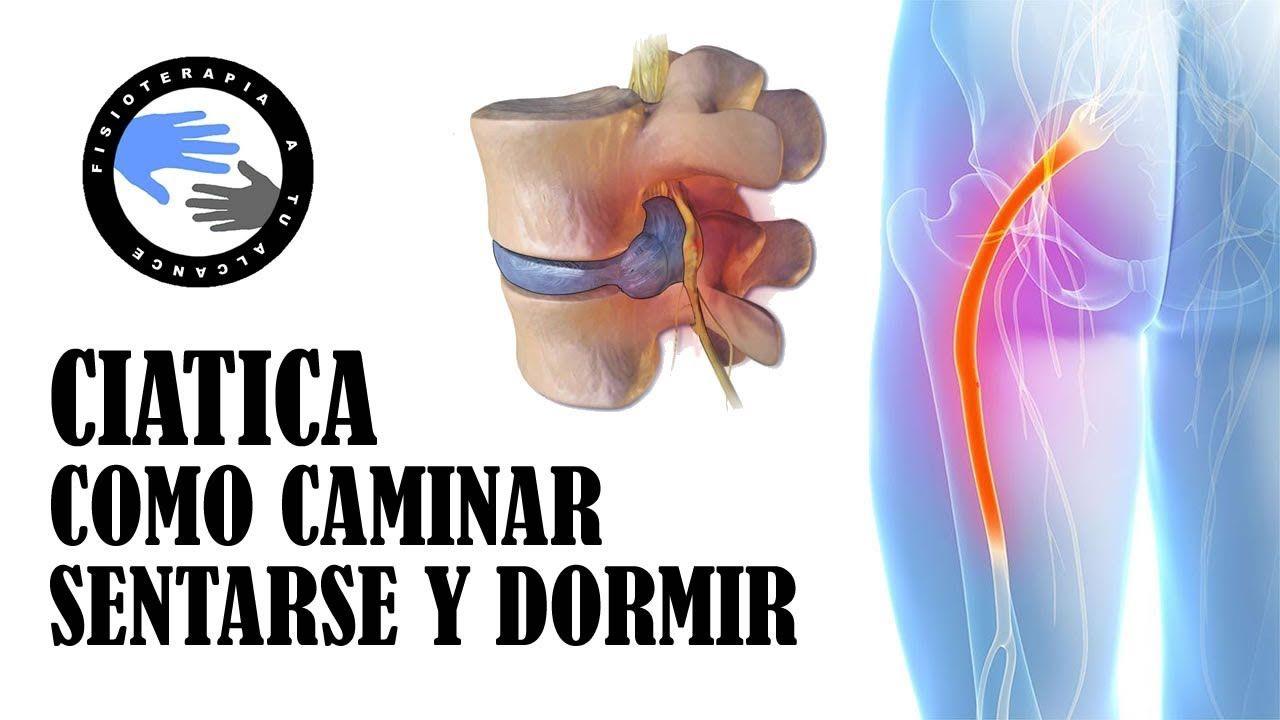 dolor de la cintura pélvica versus ciática