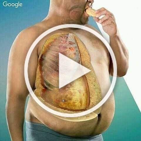Tejido adiposo en Obesidad