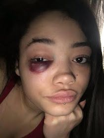 Welcome To Chitoo's Diary.: Shocking :Girl ends up with a black eye   after sh...