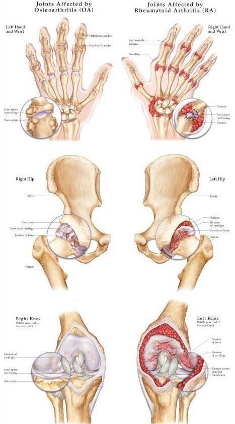 arthrosis arthrosis kezelés