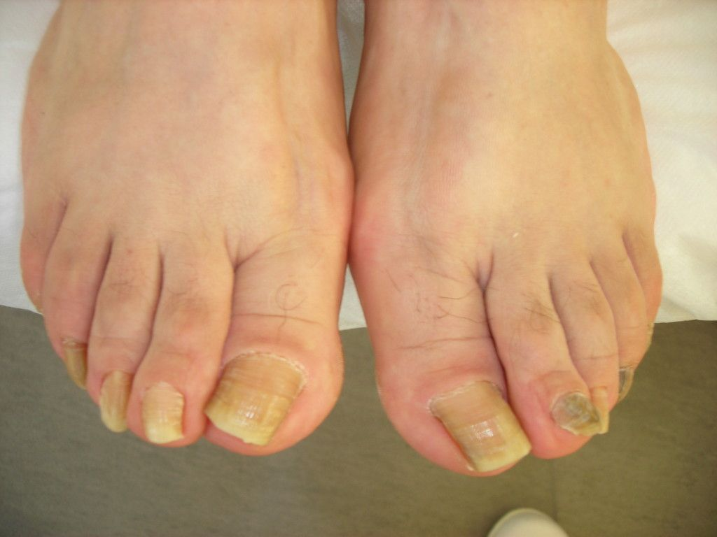 Want To Know How To Get Rid of A Toenail Fungus? Here are 11 ...