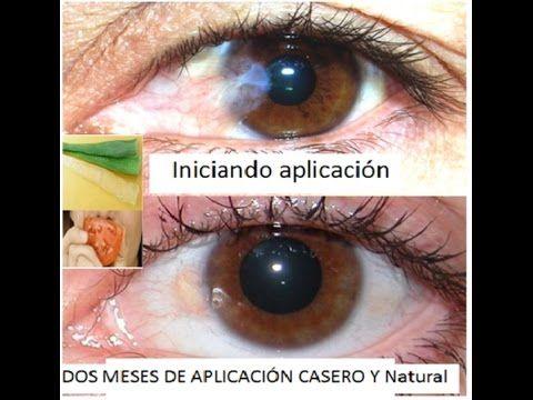 como eliminar derrame en el ojo
