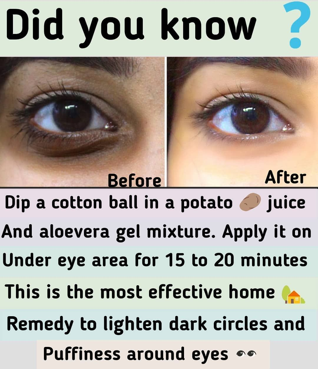 """beauty.tipss on Instagram: """"Most effective home � remedy to get rid of dark circles and puffiness under eyes � . Please do like ️ and tag �� someone who needs this…"""""""