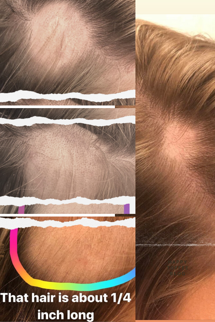Super Embarrassing These Pictures Show The Progression Of Alopecia During These Last Scalp Psoriasis Treatment Psoriasis Lotion Nail Psoriasis Treatment