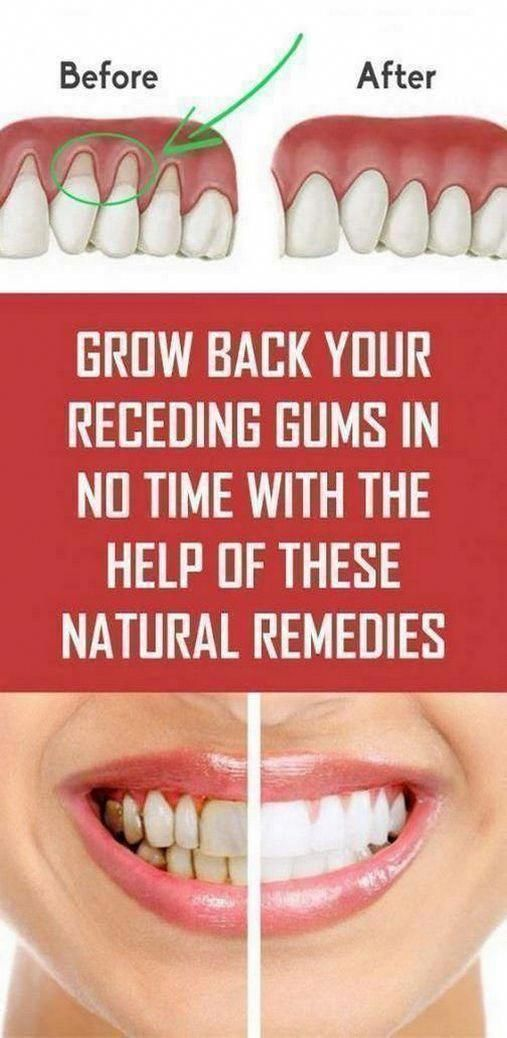 healthy life 4 you: Grow Back Your Receding Gums With These Natural Remedies !#health #fitness #beau...