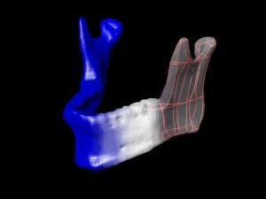 3D Printing Breaks into the Medical Field
